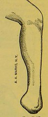 This image is taken from Page 32 of Manual of artificial limbs [electronic resource] : an exhaustive exposition of prothesis (Medical Heritage Library, Inc.) Tags: prostheses implants artificial limbs ucllibrary ukmhl medicalheritagelibrary europeanlibraries date1908 idb2129091x