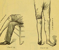 This image is taken from Page 31 of Manual of artificial limbs [electronic resource] : an exhaustive exposition of prothesis (Medical Heritage Library, Inc.) Tags: prostheses implants artificial limbs ucllibrary ukmhl medicalheritagelibrary europeanlibraries date1908 idb2129091x