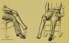 This image is taken from Page 30 of Manual of artificial limbs [electronic resource] : an exhaustive exposition of prothesis (Medical Heritage Library, Inc.) Tags: prostheses implants artificial limbs ucllibrary ukmhl medicalheritagelibrary europeanlibraries date1908 idb2129091x