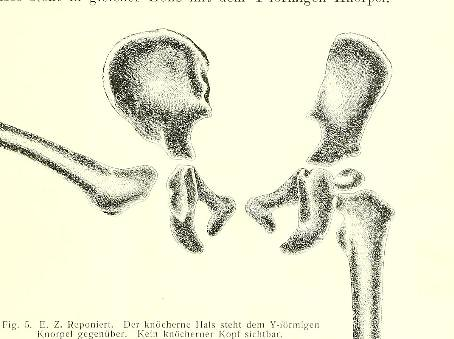 This image is taken from Page 7 of Die angeborene HÉÂÂftgelenksverrenkung / von Peter Bade.
