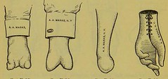 This image is taken from Page 198 of Manual of artificial limbs [electronic resource] : an exhaustive exposition of prothesis (Medical Heritage Library, Inc.) Tags: prostheses implants artificial limbs ucllibrary ukmhl medicalheritagelibrary europeanlibraries date1908 idb2129091x