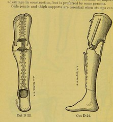 This image is taken from Page 44 of Manual of artificial limbs [electronic resource] : an exhaustive exposition of prothesis (Medical Heritage Library, Inc.) Tags: prostheses implants artificial limbs ucllibrary ukmhl medicalheritagelibrary europeanlibraries date1908 idb2129091x