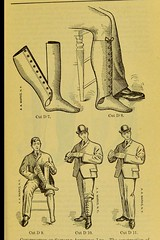 This image is taken from Page 39 of Manual of artificial limbs [electronic resource] : an exhaustive exposition of prothesis (Medical Heritage Library, Inc.) Tags: artificial limbs implants prostheses ucllibrary medicalheritagelibrary date1908 europeanlibraries ukmhl idb2129091x