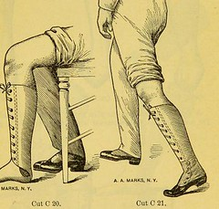 This image is taken from Page 33 of Manual of artificial limbs [electronic resource] : an exhaustive exposition of prothesis (Medical Heritage Library, Inc.) Tags: prostheses implants artificial limbs ucllibrary ukmhl medicalheritagelibrary europeanlibraries date1908 idb2129091x