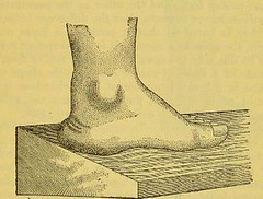 This image is taken from Page 23 of Manual of artificial limbs [electronic resource] : an exhaustive exposition of prothesis (Medical Heritage Library, Inc.) Tags: prostheses implants artificial limbs ucllibrary ukmhl medicalheritagelibrary europeanlibraries date1908 idb2129091x