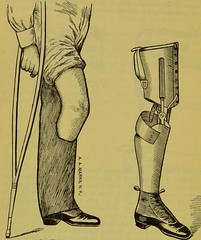 This image is taken from Page 64 of Manual of artificial limbs [electronic resource] : an exhaustive exposition of prothesis (Medical Heritage Library, Inc.) Tags: prostheses implants artificial limbs ucllibrary ukmhl medicalheritagelibrary europeanlibraries date1908 idb2129091x