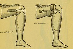 This image is taken from Page 63 of Manual of artificial limbs [electronic resource] : an exhaustive exposition of prothesis (Medical Heritage Library, Inc.) Tags: prostheses implants artificial limbs ucllibrary ukmhl medicalheritagelibrary europeanlibraries date1908 idb2129091x
