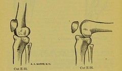 This image is taken from Page 62 of Manual of artificial limbs [electronic resource] : an exhaustive exposition of prothesis (Medical Heritage Library, Inc.) Tags: prostheses implants artificial limbs ucllibrary ukmhl medicalheritagelibrary europeanlibraries date1908 idb2129091x