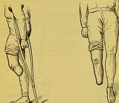 This image is taken from Page 61 of Manual of artificial limbs [electronic resource] : an exhaustive exposition of prothesis (Medical Heritage Library, Inc.) Tags: prostheses implants artificial limbs ucllibrary ukmhl medicalheritagelibrary europeanlibraries date1908 idb2129091x