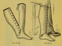 This image is taken from Page 42 of Manual of artificial limbs [electronic resource] : an exhaustive exposition of prothesis (Medical Heritage Library, Inc.) Tags: prostheses implants artificial limbs ucllibrary ukmhl medicalheritagelibrary europeanlibraries date1908 idb2129091x