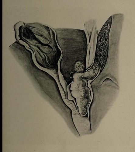 This image is taken from Ueber das primäre und metastatische Carcinom im Ductus hepaticus und an der Vereinigungsstelle der drei grossen Gallengänge ...