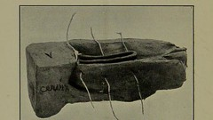 This image is taken from Page 10 of Sacral suspension of the uterus : a new technic (Medical Heritage Library, Inc.) Tags: round ligament rcseng ukmhl medicalheritagelibrary europeanlibraries date1909 idb22413339