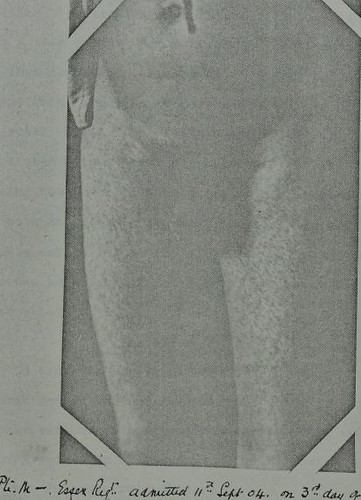 This image is taken from Page 129 of Malta fever