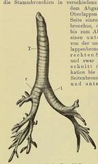 This image is taken from Page 286 of Gedenkband für J. von Mikulicz (Medical Heritage Library, Inc.) Tags: mikuliczradecki johann von 18501905 general surgery wellcomelibrary ukmhl medicalheritagelibrary europeanlibraries date1907 idb24850858