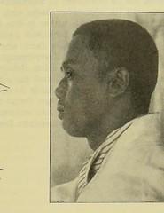 This image is taken from Page 167 of Gedenkband für J. von Mikulicz (Medical Heritage Library, Inc.) Tags: mikuliczradecki johann von 18501905 general surgery wellcomelibrary ukmhl medicalheritagelibrary europeanlibraries date1907 idb24850858