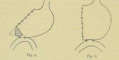 This image is taken from Page 158 of Gedenkband für J. von Mikulicz (Medical Heritage Library, Inc.) Tags: mikuliczradecki johann von 18501905 general surgery wellcomelibrary ukmhl medicalheritagelibrary europeanlibraries date1907 idb24850858