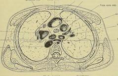 This image is taken from Page 291 of Gedenkband für J. von Mikulicz (Medical Heritage Library, Inc.) Tags: mikuliczradecki johann von 18501905 general surgery wellcomelibrary ukmhl medicalheritagelibrary europeanlibraries date1907 idb24850858