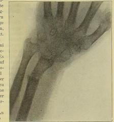This image is taken from Page 93 of Gedenkband für J. von Mikulicz (Medical Heritage Library, Inc.) Tags: mikuliczradecki johann von 18501905 general surgery wellcomelibrary ukmhl medicalheritagelibrary europeanlibraries date1907 idb24850858