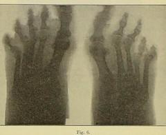 This image is taken from Page 722 of Gedenkband für J. von Mikulicz (Medical Heritage Library, Inc.) Tags: mikuliczradecki johann von 18501905 general surgery wellcomelibrary ukmhl medicalheritagelibrary europeanlibraries date1907 idb24850858