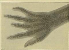 This image is taken from Page 716 of Gedenkband für J. von Mikulicz (Medical Heritage Library, Inc.) Tags: mikuliczradecki johann von 18501905 general surgery wellcomelibrary ukmhl medicalheritagelibrary europeanlibraries date1907 idb24850858