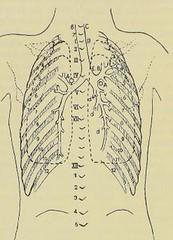 This image is taken from Page 290 of Gedenkband für J. von Mikulicz (Medical Heritage Library, Inc.) Tags: mikuliczradecki johann von 18501905 general surgery wellcomelibrary ukmhl medicalheritagelibrary europeanlibraries date1907 idb24850858