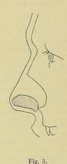 This image is taken from Page 164 of Gedenkband für J. von Mikulicz (Medical Heritage Library, Inc.) Tags: mikuliczradecki johann von 18501905 general surgery wellcomelibrary ukmhl medicalheritagelibrary europeanlibraries date1907 idb24850858