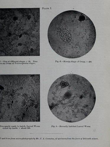 This image is taken from Page 3 of Ankylostomiasis : its cause, treatment, and prevention