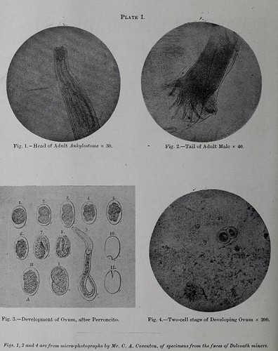 This image is taken from Page 2 of Ankylostomiasis : its cause, treatment, and prevention