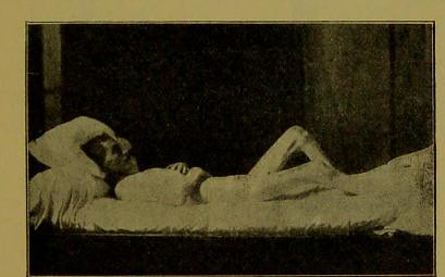 This image is taken from Page 3 of The extinction of Malta fever : (a lesson in the use of animal experiment)