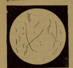 This image is taken from Page 308 of Manuel de pathologie interne