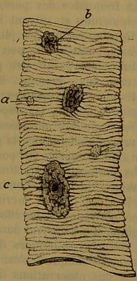This image is taken from Page 117 of Manuel de pathologie interne