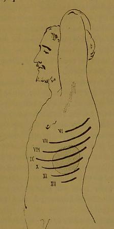 This image is taken from Page 475 of Manuel de pathologie interne
