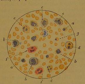 This image is taken from Page 471 of Manuel de pathologie interne