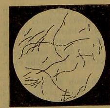 This image is taken from Page 386 of Manuel de pathologie interne