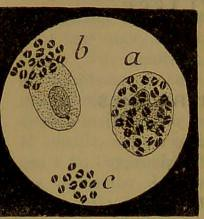 This image is taken from Page 410 of Manuel de pathologie interne