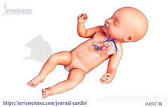 Congenital Heart Disease (SeriesScience International) Tags: seriesscience openaccess peerreviewed journal jscr cardiology cardiovascular heartdisease heartproblem rapidbreathing weightgain skinproblem feelingtired