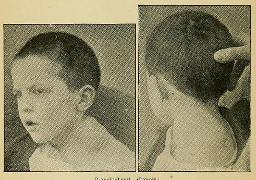This image is taken from Page 120 of A system of practical surgery, v.2