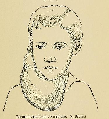 This image is taken from Page 115 of A system of practical surgery, v.2