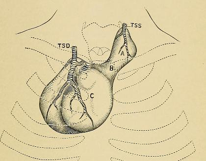 This image is taken from Page 105 of A system of practical surgery, v.2