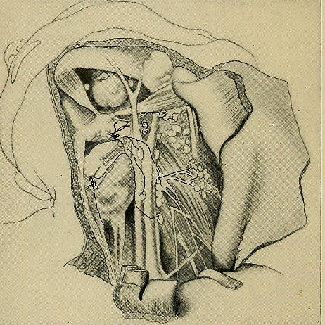 This image is taken from Page 90 of A system of practical surgery, v.2