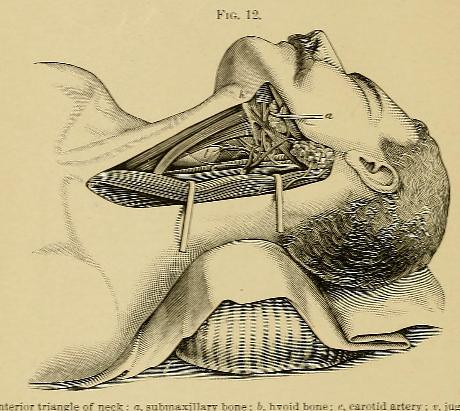 This image is taken from Page 46 of A system of practical surgery, v.2