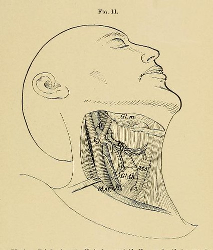 This image is taken from Page 45 of A system of practical surgery, v.2