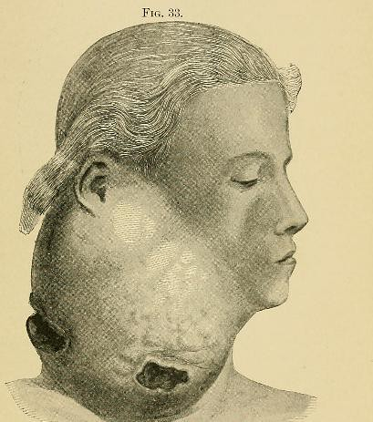 This image is taken from Page 117 of A system of practical surgery, v.2
