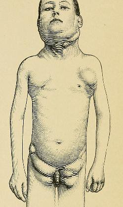 This image is taken from Page 111 of A system of practical surgery, v.2