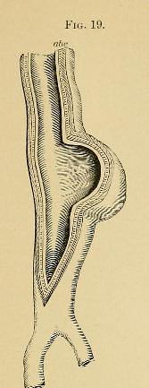 This image is taken from Page 67 of A system of practical surgery, v.2