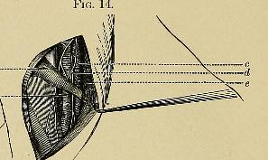 This image is taken from Page 48 of A system of practical surgery, v.2
