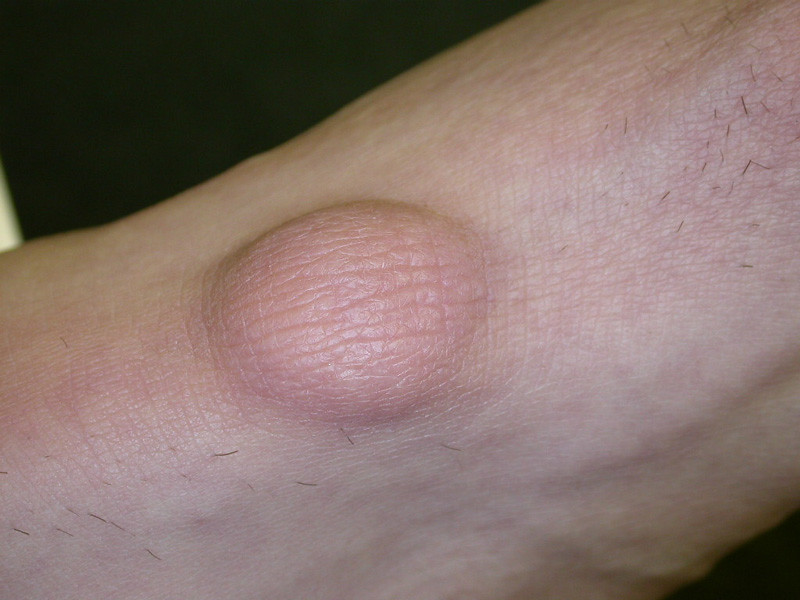 The World's most recently posted photos of lipoma - Flickr Hive Mind