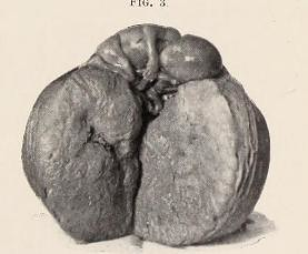 This image is taken from Transactions of the American Association of Obstetricians and Gynecologists for the year ..., v.14, (1901)
