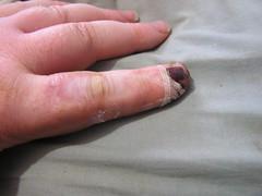 Broken Splint Remove due to pain - 10-07-2019 (Lord Inquisitor) Tags: finger flesh white pain splint compression hurt anger fustration evil threats sore injury broken brokenfinger