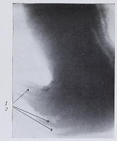 This image is taken from Die Diagnose der bösartigen und gutartigen Magen- und Duodenalläsionen und ihre Unterscheidung durch Serien-Röntgenaufnahmen